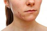 Trądzik, choroby skóry